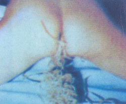 понос от паразитов